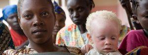 Día Internacional de Sensibilización sobre el Albinismo  – 13 de junio